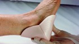 ¿Cómo prevenir una úlcera por presión?