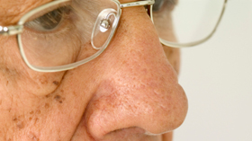 geriatricarea salud ocular
