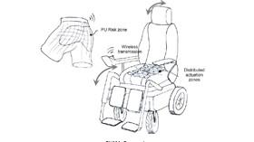 Textiles inteligentes para prevenir y detectar úlceras por presión