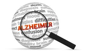 Geriatricarea envejecimiento alzheimer DEVELAGE