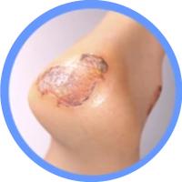 Geriatricarea heridas apósitos pacientesycuidadores