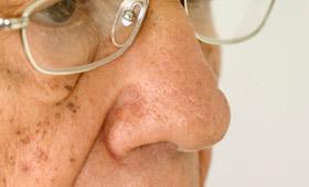 Geriatricarea manchas seniles Eucerín hiperpigmentación