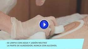 Vídeo: cuidados de personas con ostomía