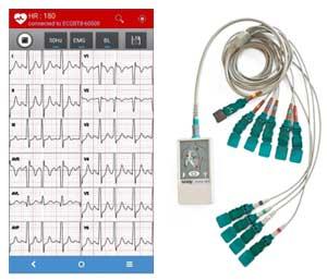geriatricarea electrocardiógrafo de reposo Blue ECG