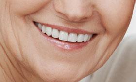 geriatricarea prótesis dentales 3D Procoven