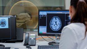Neuroimagen, una tecnología clave para la detección precoz del Alzheimer