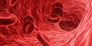 Causas y factores de riesgo de la enfermedad tromboembólica venosa