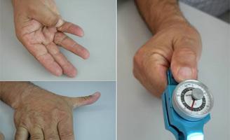 geriatricarea rizartrosis artritis Quirónsalud