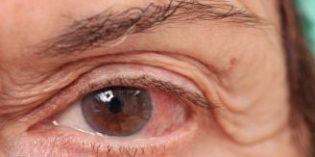La prevención en enfermedades de la retina, imprescindible para evitar daños irreversibles