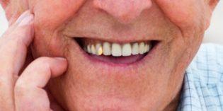 La población española mayor de 60 años descuida su salud bucodental