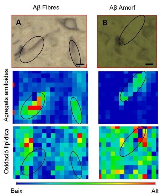 geriatricarea Alzheimer luz de sincrotrón