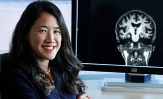 geriatricarea Sharon Sha alzheimer transfusiones de plama