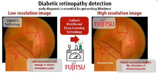 geriatricarea Fujitsu retinopatía diabética Inteligencia Artificial