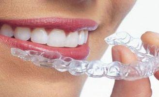 geriatricarea ortodoncia invisible