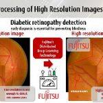 Un solución basada en Inteligencia Artificial permite la detección temprana de la retinopatía diabética