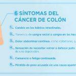 ¡Ojo a estos seis síntomas del cáncer de colon!