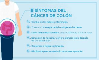 Cancer de colon y sus sintomas, Cancer de colon rectal sintomas