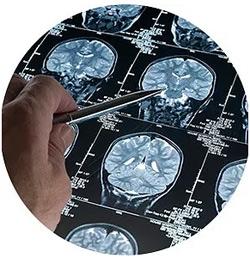 geriatricarea neuroimagen Fundación Pasqual Maragall alzheimer