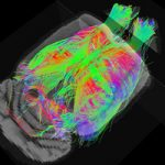 La resonancia magnética detecta de forma precoz alteraciones cerebrales propias del Alzheimer