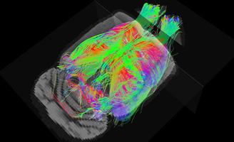geriatricarea resonancia magnética Alzheimer