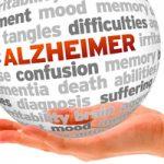 Una nueva técnica de mapeo cerebral permite diagnosticar el Alzheimer con más de un 90% de precisión