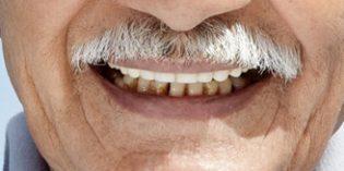 La enfermedad periodontal puede desencadenar artritis reumatoide