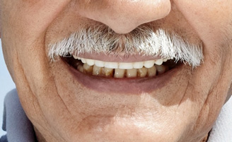 geriatricarea enfermedad periodontal artritis reumatoide