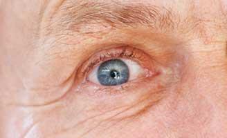 geriatricarea retina Alzheimer