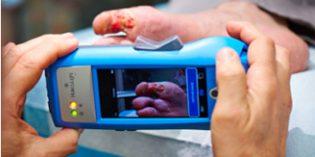 El dispositivo MolecuLight i:X permite visualizar en tiempo real los niveles de bacterias en heridas