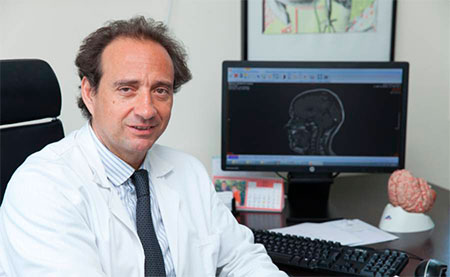 geriatricarea prevencion del Alzheimer