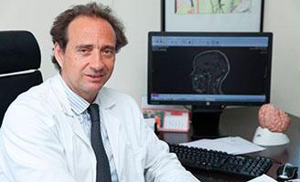 geriatricarea prevención del Alzheimer