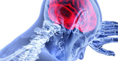 geriatricarea NeuroQuant enfermedades neurodegenerativas