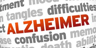 Identifican nuevos cambios cerebrales en etapas tempranas de la Enfermedad de Alzheimer