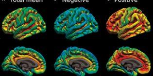 El sueño de mala calidad puede ser un signo precoz del Alzheimer