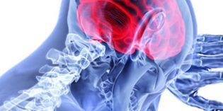 Creu Blanca incorpora la técnica NeuroQuant para detectar enfermedades neurodegenerativas