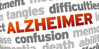 Descubren cinco nuevas variantes genéticas que influyen en el riesgo de sufrir Alzheimer
