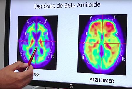 geriatricarea Alzheimer quironsalud