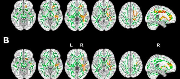 geriatricarea alzheimer insomnio