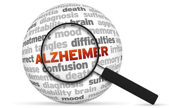 geriatricarea alzheimer valdecilla