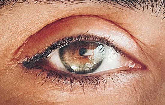 geriatricarea Glaucoma agaf