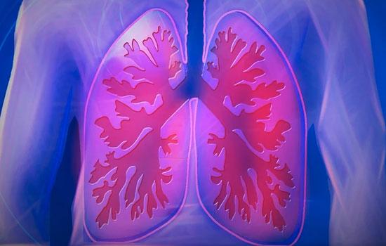 geriatricarea tromboembolia pulmonar
