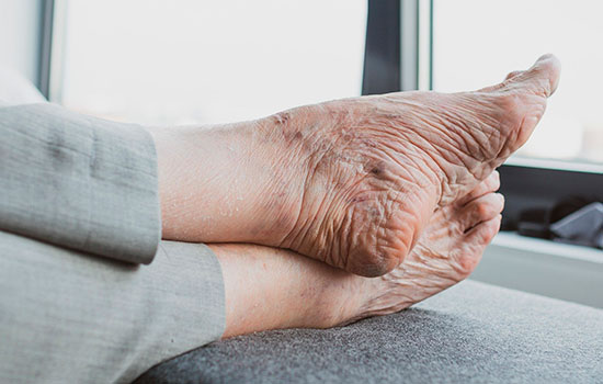 geriatricarea cuidado pies