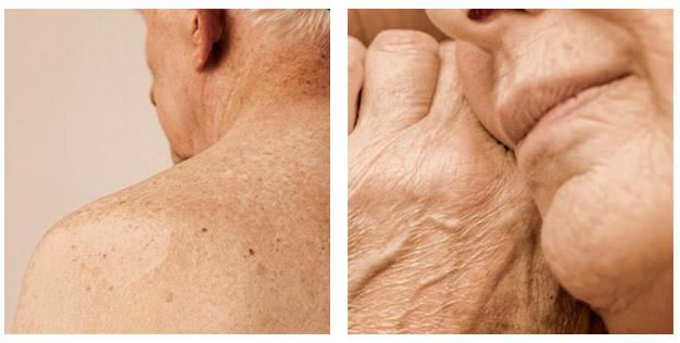 geriatricarea piel