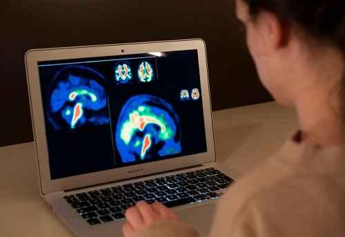 geriatricarea PET amiloide