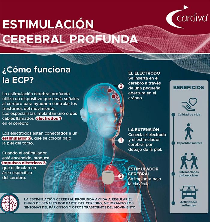 geriatricarea estimulacion cerebral profunda cardiva