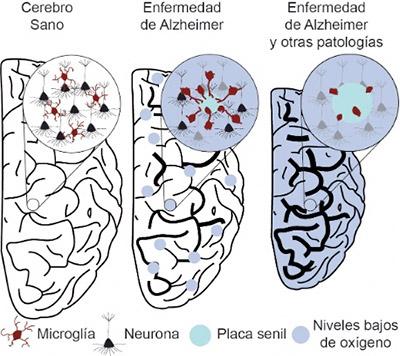 geriatricarea Enfermedad de Alzheimer