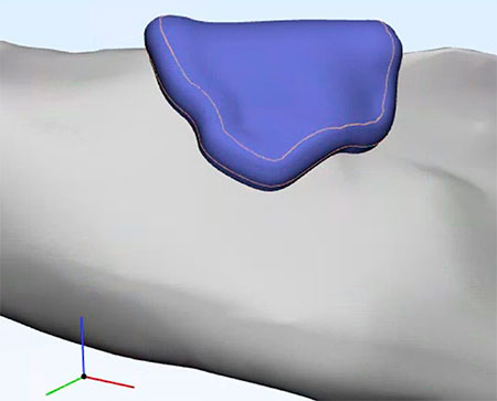 geriatricarea bioimpresion IBV AIMPLAS