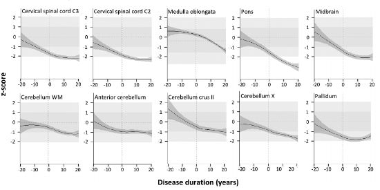 Geriatricarea resultados del grupo IDIVAL biomarcadores preclínicos y de progresión